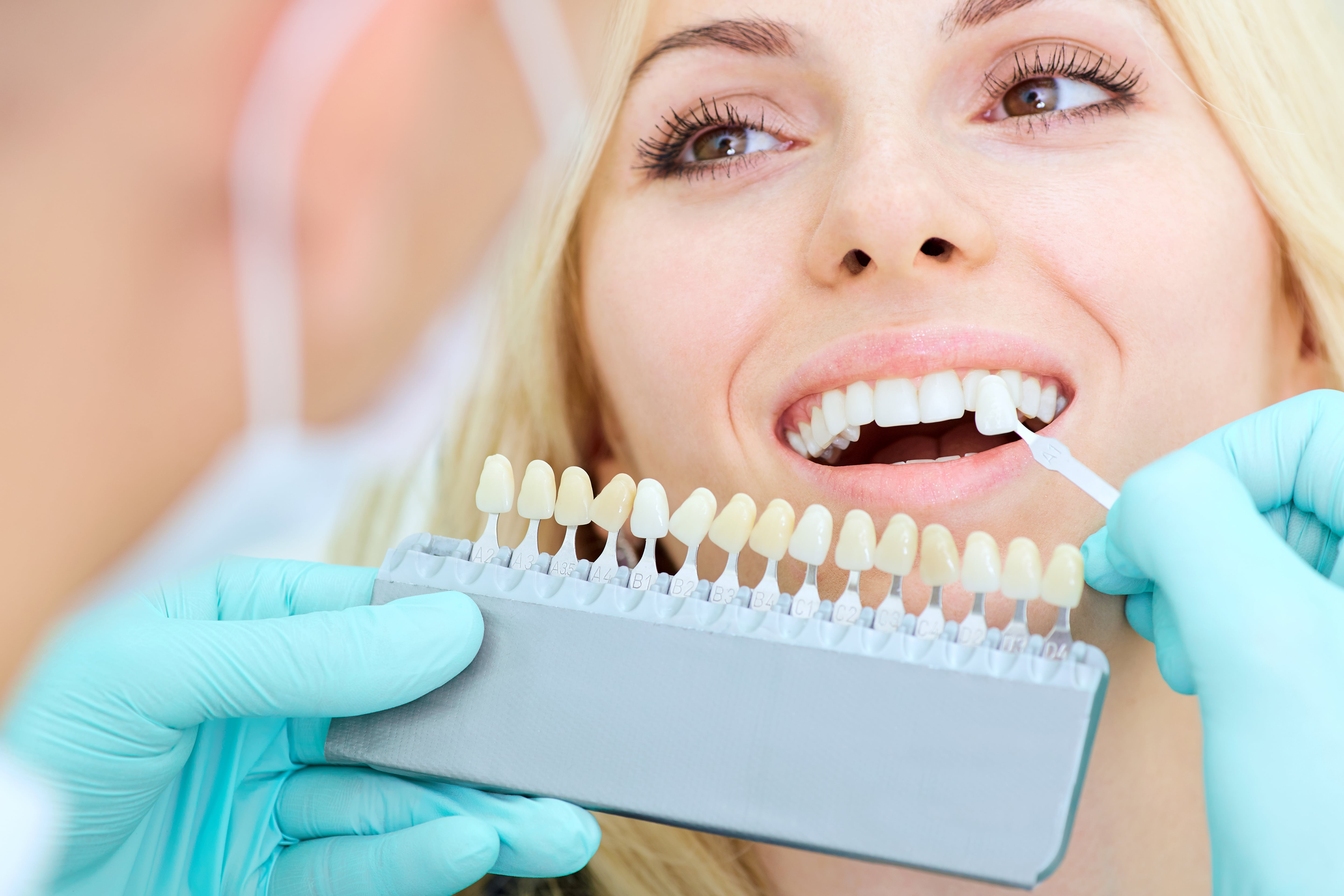 Commonly asked questions about Dental Implants