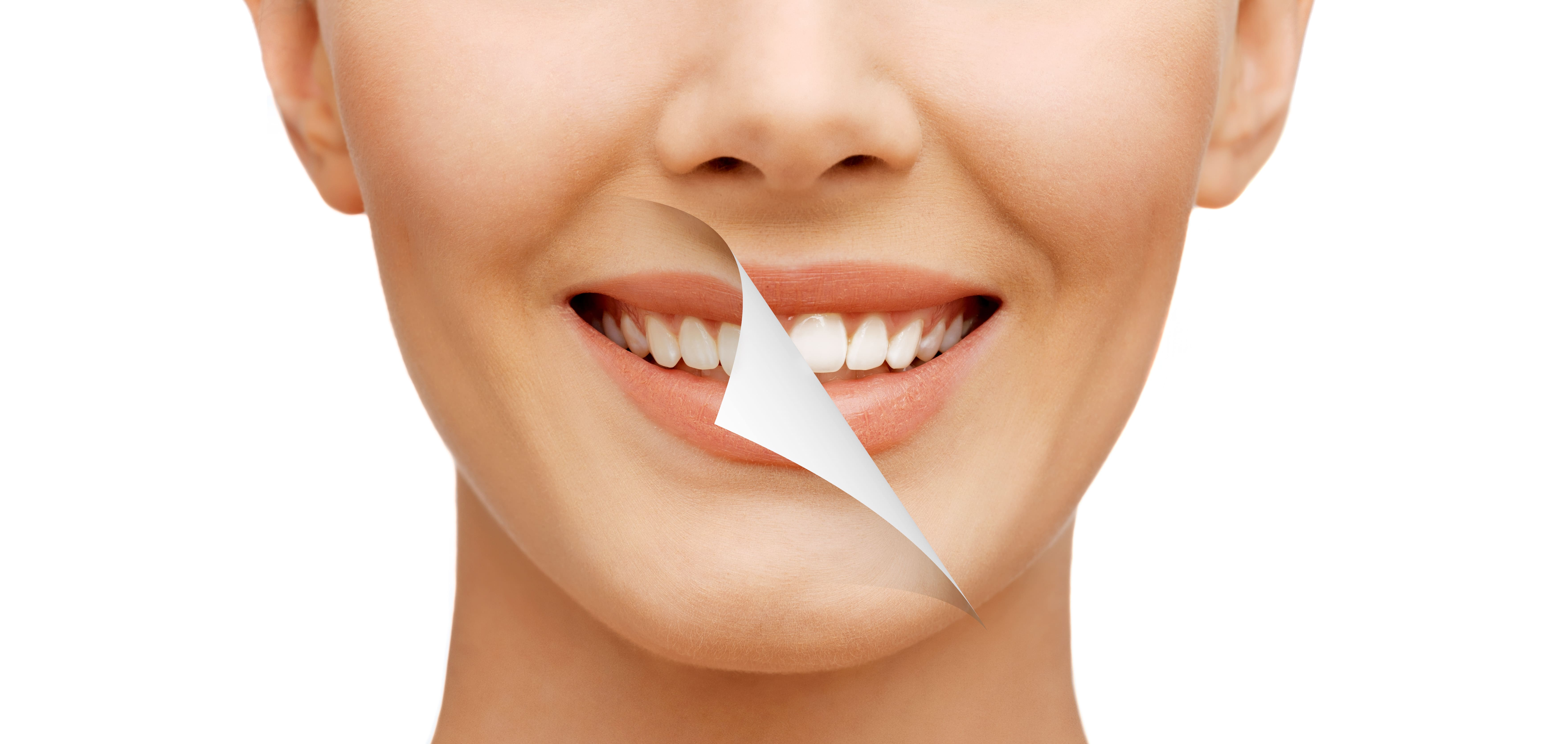 Teeth Whitening FAQ's