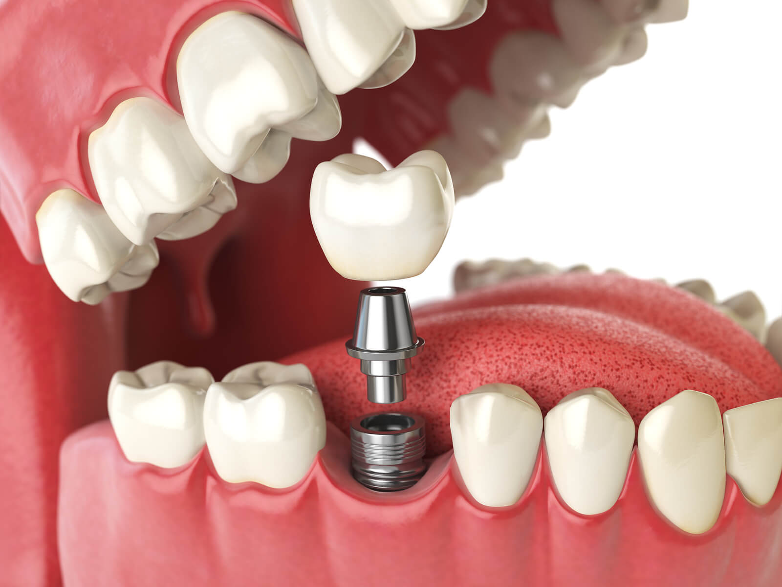 Which is best: Tooth or implant?