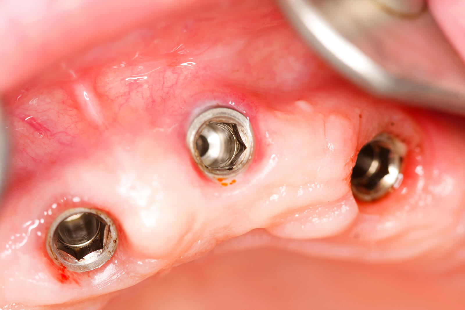 Dental implants FAQ